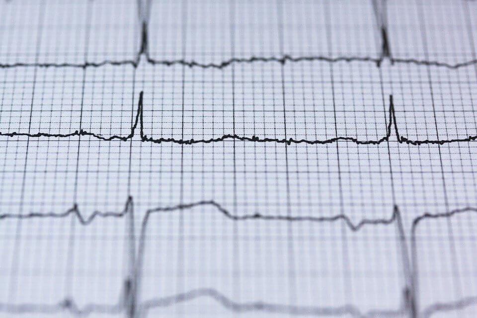 Herzratenvariabilität